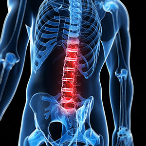 chicago spinal cord injury